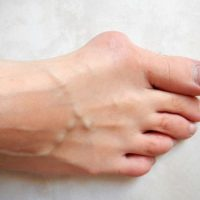 Image of best shoes for wide feet with bunions